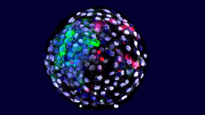 """Investigadores liderados por el español Juan Carlos Izpisúa logran generar """"embriones quimera""""  de humano y mono"""