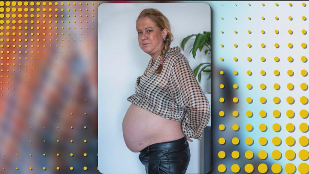Diez años 'embarazada de nueve meses' al sufrir una distensión abdominal en el parto