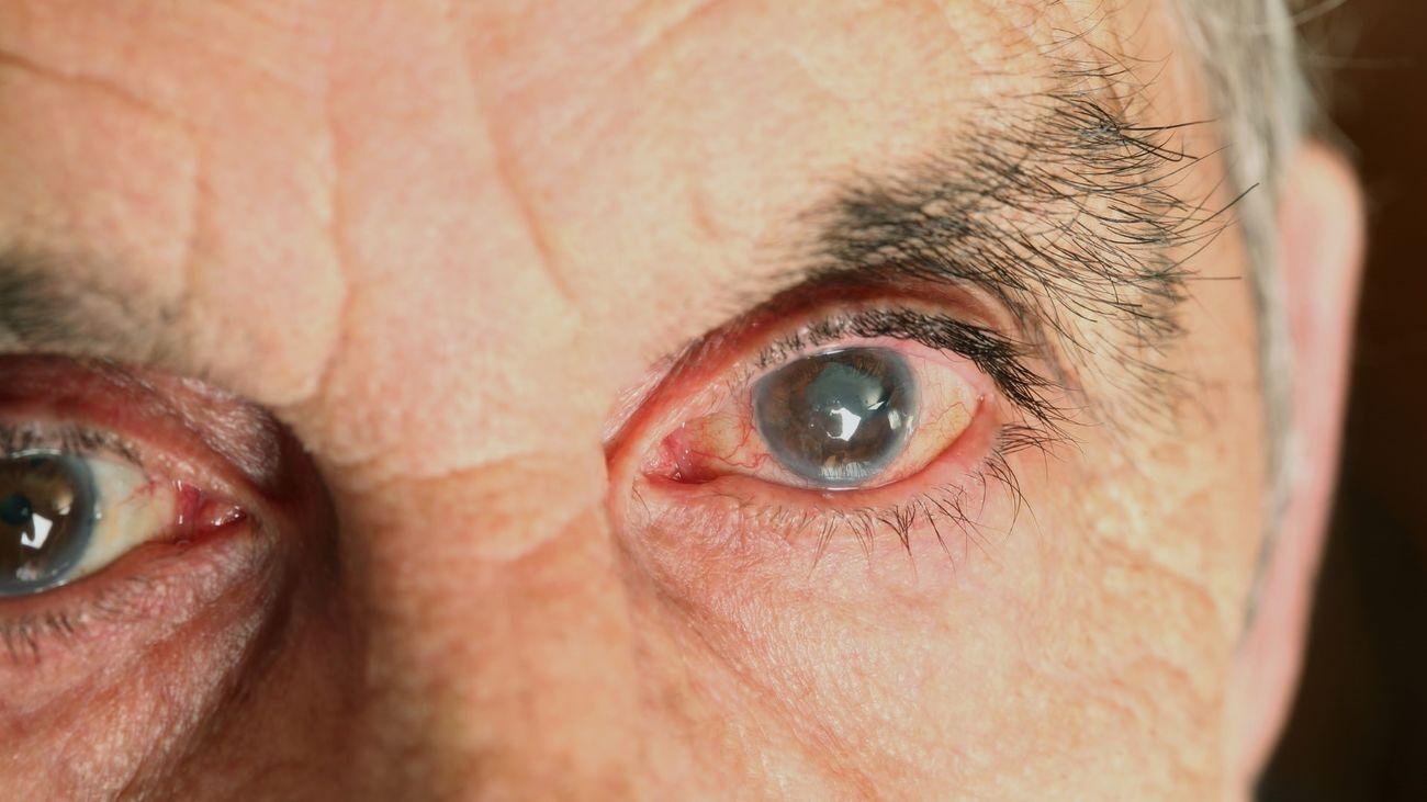 Las cataratas, un problema en la vista cada vez con más casos