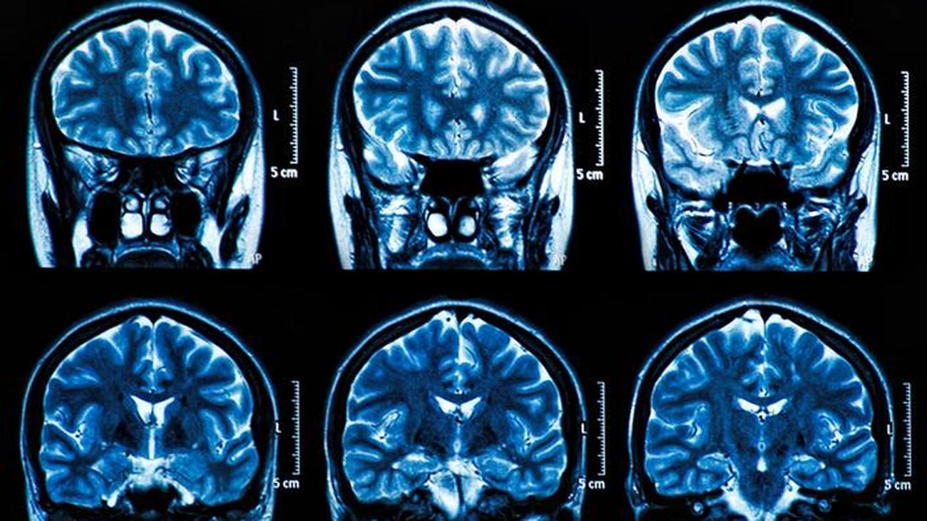 Un estudio no encuentra signos de lesión cerebral permanentes a largo plazo tras sufrir la Covid-19
