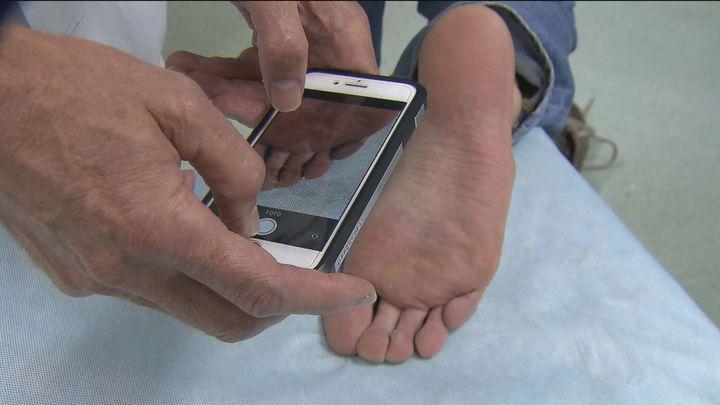 Una app se convierte en tu dermatólogo de bolsillo para el seguimiento de lesiones en la piel