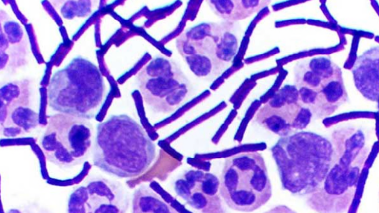 Frotis sanguíneo con presencia de bacilos de ántrax